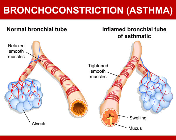ASTHMA (normal inflamed)