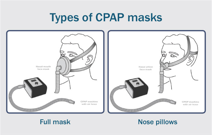 types-of-cpap